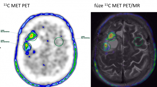 Užití radiofarmaka 11C-Methionin vpraxi (vlevo vyšetření PET, vpravo vyšetření PET vkombinaci sMR)